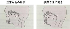飲み込むときの舌の正しい動き