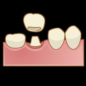 歯を入れる
